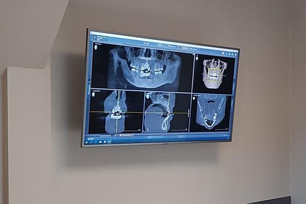 Digitales Röntgen / DVT (3D Röntgen)